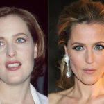 Gillian Anderson before and after plastic surgery (12)