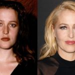 Gillian Anderson before and after plastic surgery (15)