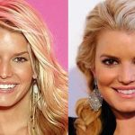 Jessica Simpson before and after plastic surgery (20)