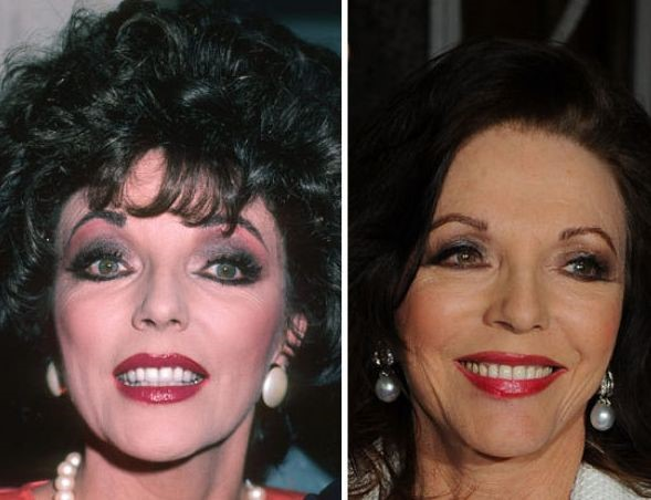 Joan Collins before and after plastic surgery (40)