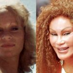 Jocelyn Wildenstein before and after plastic surgery (01)