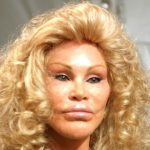 Jocelyn Wildenstein plastic surgery (16)