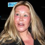 Jocelyn Wildenstein plastic surgery (2)