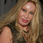 Jocelyn Wildenstein plastic surgery (9)