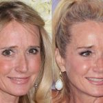 Kim Richards before and after plastic surgery (21)
