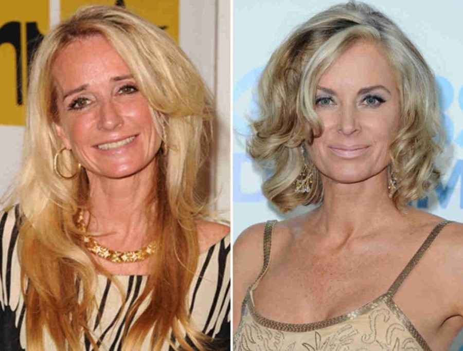 Kim Richards before and after plastic surgery