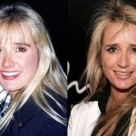 Kim Richards before and after plastic surgery (38)