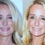 Kim Richards before and after plastic surgery (39)