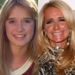 Kim Richards before and after plastic surgery (5)
