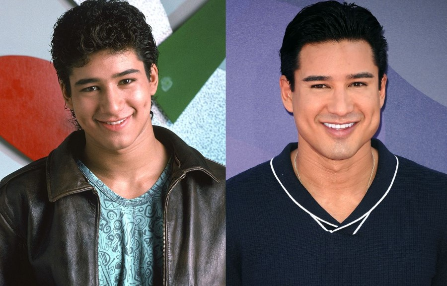 Mario Lopez before and after plastic surgery