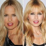 Rachel Zoe before and after plastic surgery (1)