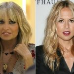 Rachel Zoe before and after plastic surgery (13)