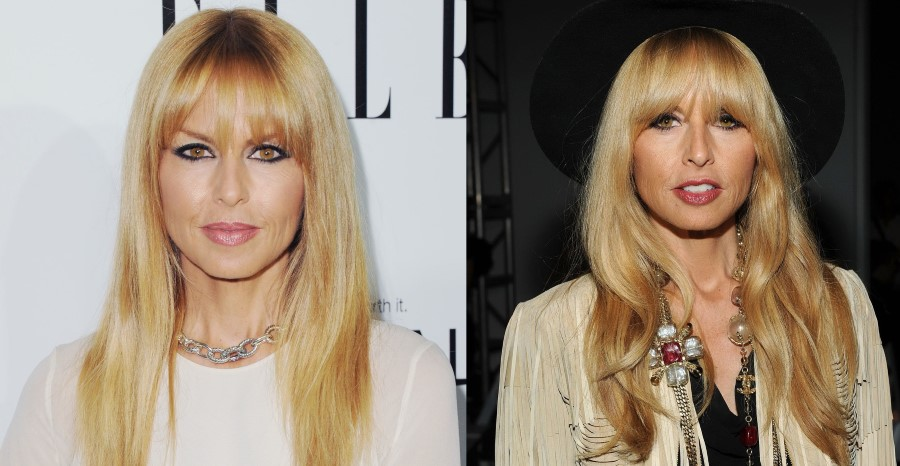 Rachel Zoe before and after plastic surgery