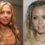 Rachel Zoe before and after plastic surgery (41)