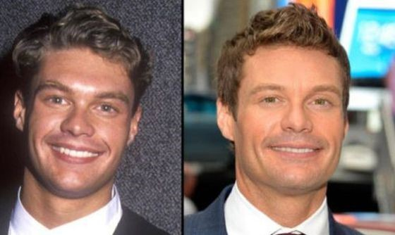 Ryan Seacrest before and after plastic surgery
