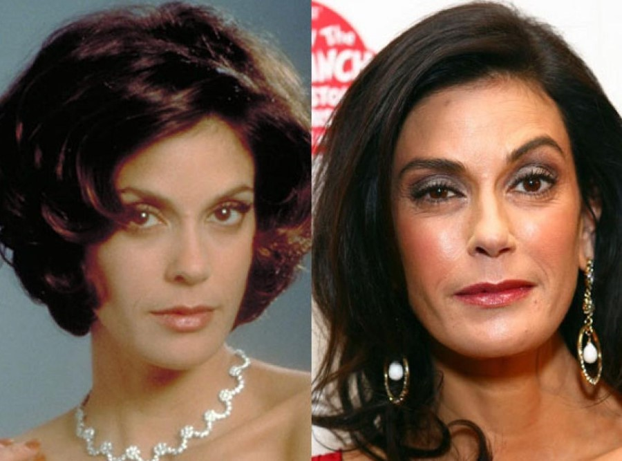 Teri Hatcher before and after plastic surgery