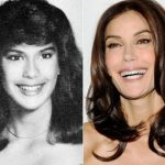 Teri Hatcher before and after plastic surgery (8)