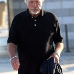 Tom Jones plastic surgery (32)