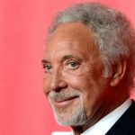 Tom Jones plastic surgery (36)