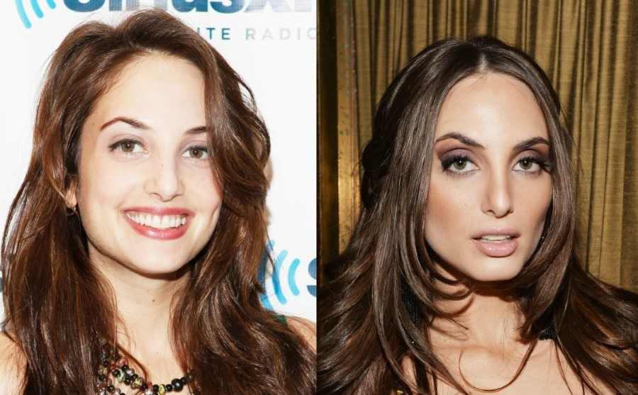 Alexa Ray Joel before and after plastic surgery