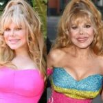 Charo before and after plastic surgery (11)