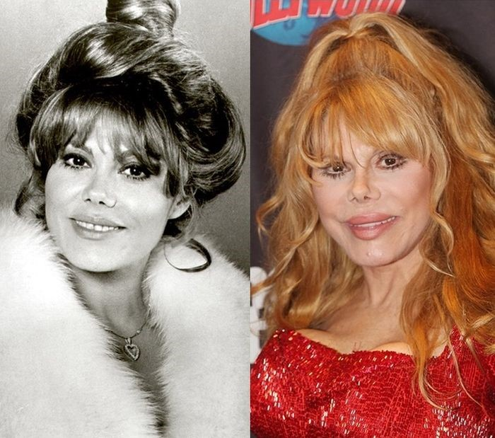 Charo before and after plastic surgery
