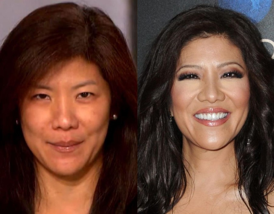 Julie Chen before and after plastic surgery