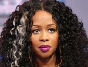 Remy Ma plastic surgery