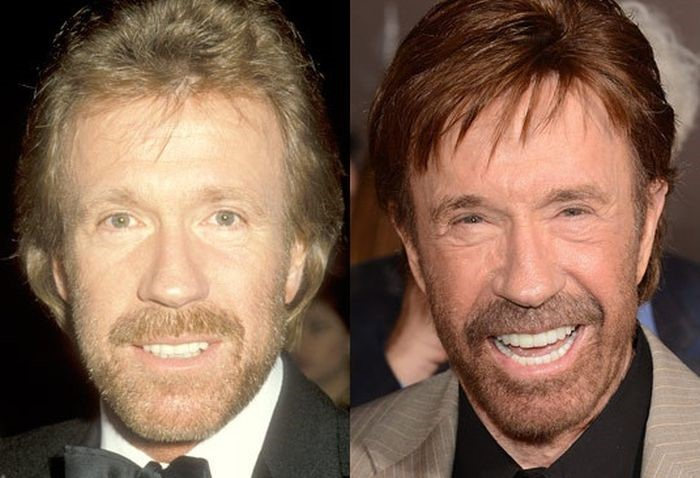 Chuck Norris before and after plastic surgery