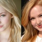 Dove Cameron plastic before and after surgery (14)