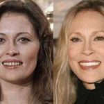 Faye Dunaway before and after plastic surgery (38)