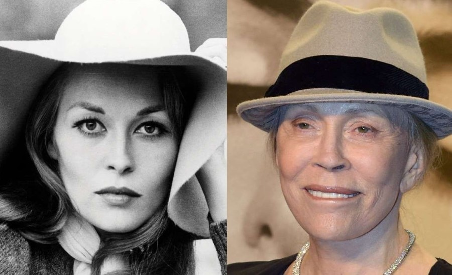 Faye Dunaway before and after plastic surgery