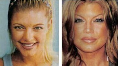 Fergie plastic surgery - Nose job