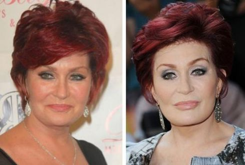 Sharon Osbourne  before and after plastic surgery