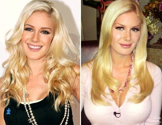 Heidi Montag Regrets All Of Her Plastic Surgery Operations