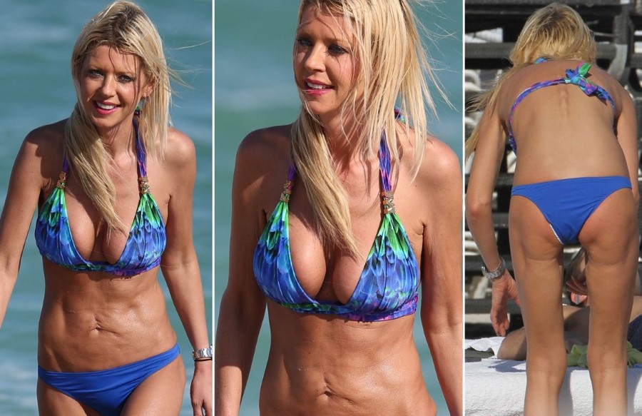 Tara Reid after plastic surgery