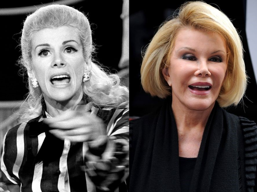 Joan Rivers Before And After Surgeries And Her Death