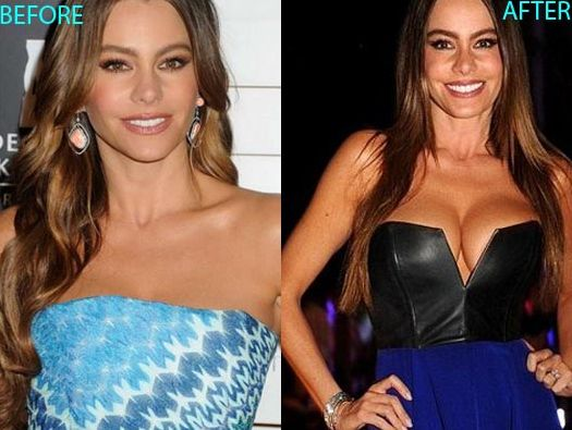 Sofia Vergara before and after breast augmentation