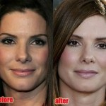 Sandra Bullock before and after plastic surgery
