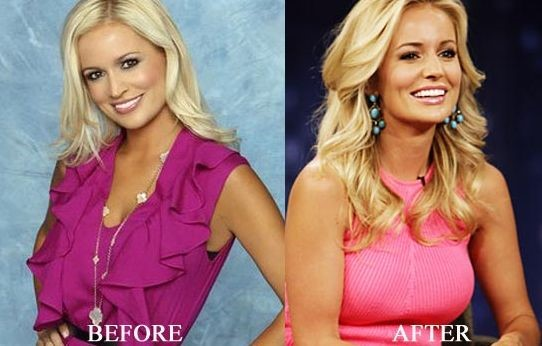 Emily Maynard breast augmentation