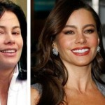 Sofia Vergara before and after cosmetic procedures