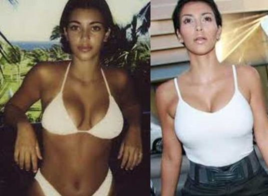 Kim Kardashian before and after breast augmentation