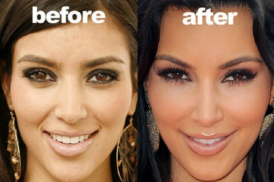 Kim Kardashian before and after face change