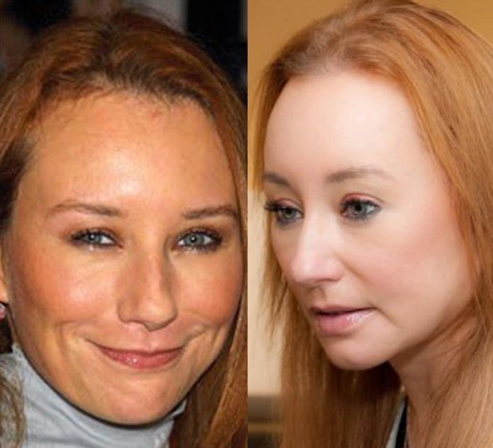 Tori Amos before and after plastic surgery
