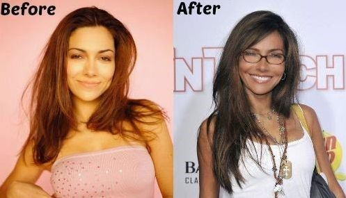 Vanessa Marcil before and after plastic surgery