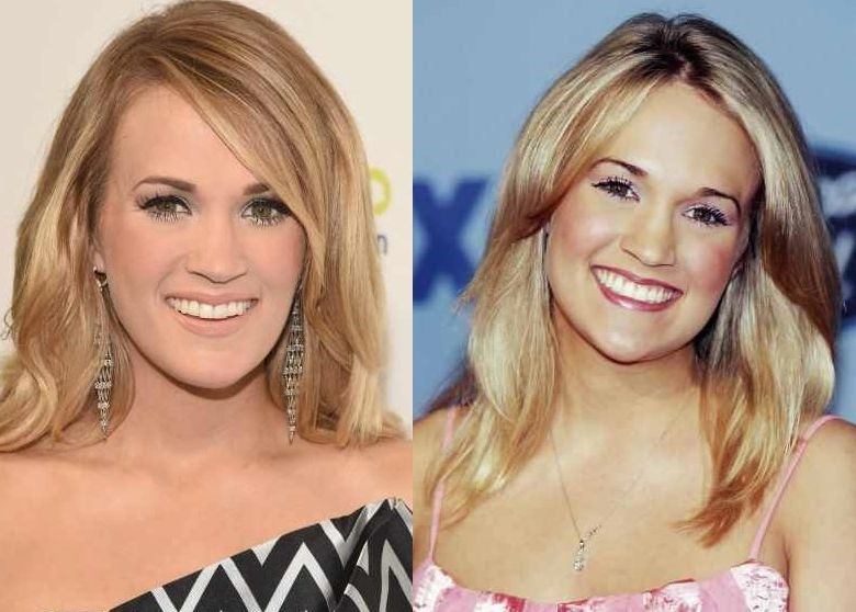 Carrie Underwood before and after plastic surgery