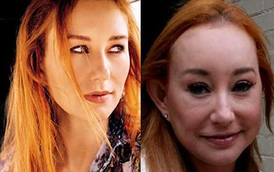 Tori Amos Plastic Surgery For Unnatural Looks