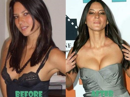 Lisa Olivia Munn before and after plastic surgery