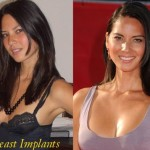 Lisa Olivia Munn before and after breast implants