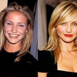 Cameron Diaz before and after plastic surgery 05